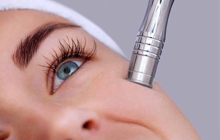 How to choose the best microdermabrasion machine